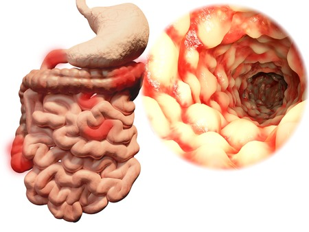 Foto per Crohns disease, gastrointestinal tract - Immagine Royalty Free