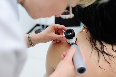 Foto de Doctor examining birthmarks and moles patient. examination of birthmarks and moles.the doctor examines the patient's mole - Imagen libre de derechos