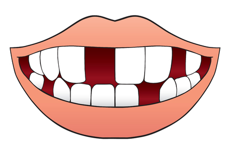 Illustrazione per Smiling cartoon mouth with missing several teeth - Immagini Royalty Free