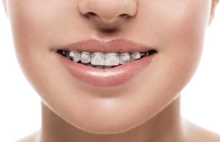 Photo pour Braces teeth mouth orthodontics woman. Close up studio shot. - image libre de droit