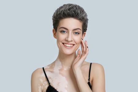 Photo pour Vitiligo woman beauty portrait. Studio shot. Gray background. - image libre de droit
