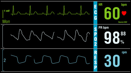 Foto de Patient monitor displays vital signs ECG electrocardiogram EKG, oxygen saturation SPO2 and respiration. Medical examination. - Imagen libre de derechos