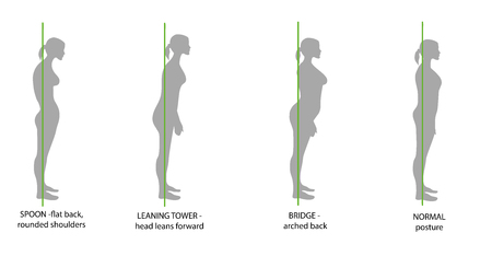 Illustration pour Silhouette of women with correct and incorrect postures. - image libre de droit