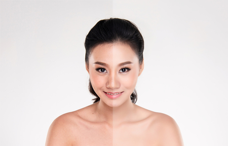 Beautiful asian young woman on white background, beauty concept. retouch before and after.face divided in two parts, poor condition the skin in good condition