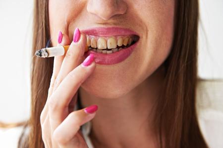 Foto de smiley woman with yellow dirty teeth holding cigarette - Imagen libre de derechos