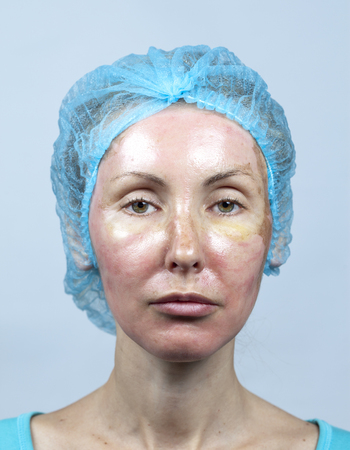 Cosmetology. New skin after a chemical peeling, a redness because of too fast deleting an old layer.