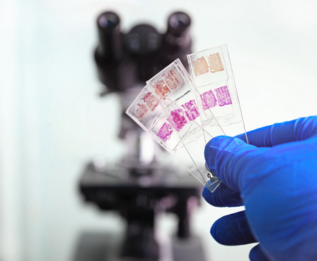 Foto de Glass slides in the laboratory. Hand in blue glove holding glass organ samples. Histological examination. The microscope in the background blurred. Pathologist at work. - Imagen libre de derechos