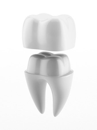 Photo pour Dental crown and tooth isolated on a white background - image libre de droit