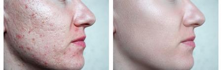 Photo pour skin face. little girl large pores. white fair skin - image libre de droit