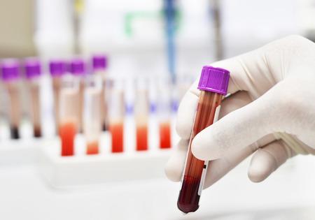 Foto de blood tube in hand - Imagen libre de derechos