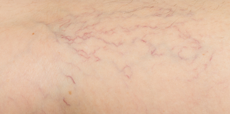 Foto per varicose veins on the skin - Immagine Royalty Free