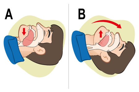 Illustrazione per First Aid CPR resuscitation clearing breathing positioning. For resuscitation. Ideal for training materials catalogs and institutional - Immagini Royalty Free
