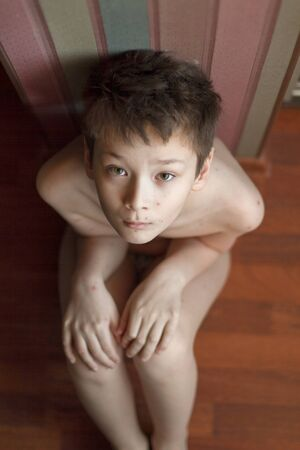 Foto de Poor boy with chickenpox. Sad little boy itching the body. Chickenpox rash - Imagen libre de derechos