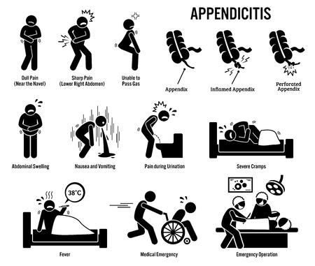 Illustration pour Appendix and Appendicitis Icons. Pictogram and diagrams depict signs, symptoms, and emergency surgery of a appendicitis patient in surgery room. - image libre de droit