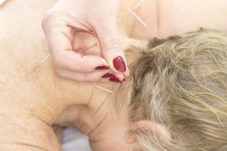 Photo for Elderly woman undergoing acupuncture procedure in a fat spa. - Royalty Free Image