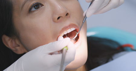 Photo for Asian Woman undergo check up of tooth in dental clinic  - Royalty Free Image