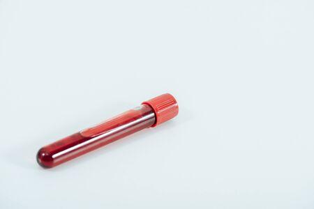 Foto de Test tube with blood sample on white surface background - Imagen libre de derechos