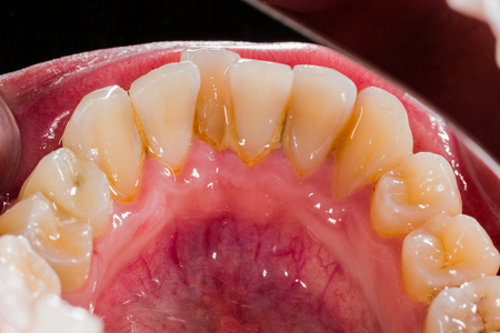 Foto de Tartar and plaque on the incisors of the lower jaw. - Imagen libre de derechos