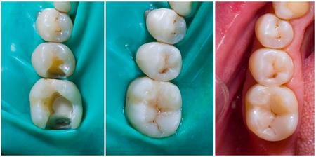 Foto de Natural looking dental filling before and after series - rebuilding function and aesthetics. - Imagen libre de derechos