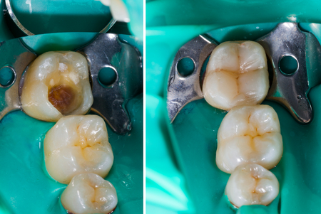 Photo for Natural looking dental filling before and after series. - Royalty Free Image