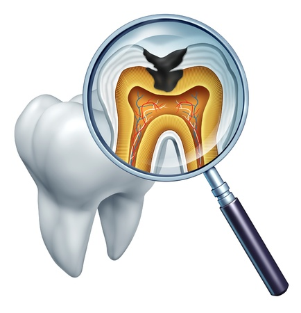 Foto de Tooth cavity close up and cavities symbol showing a magnifying glass with a cross section of a tooth anatomy in decay due to bacteria and acids in oral health care showing rotting and disease due to lack of brushing  - Imagen libre de derechos