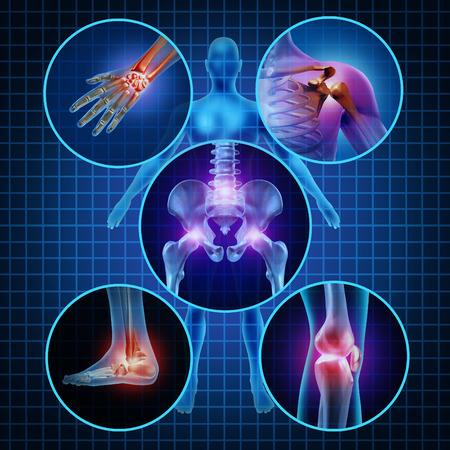 Foto de Painful joints human anatomy concept with the body as a group of circular panels of sore areas as a pain and injury or arthritis illness symbol for health care and medical symptoms due to aging or sports and work injury  - Imagen libre de derechos