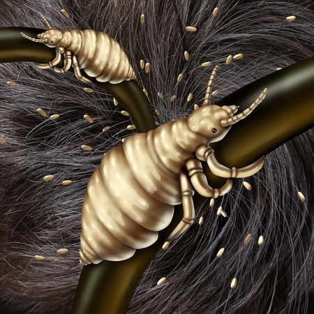 Photo pour Lice in hair problem as a medical concept with a macro close up of a human head with an infestation of parasitic nits or eggs hatching from a louse insect as a symbol of infection and treatment. - image libre de droit
