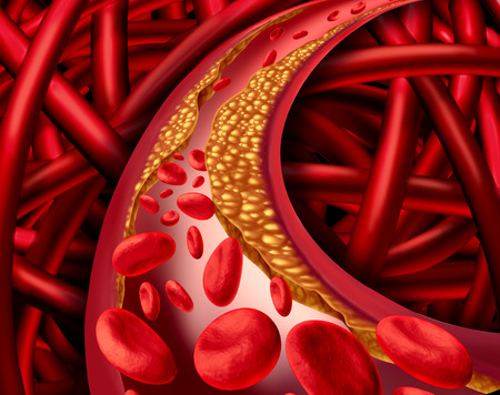 Foto de Artery problem with clogged arteries and atherosclerosis disease medical concept with a three dimensional human cardiovascular system with blood cells that blocked by plaque buildup of cholesterol as a symbol of vascular diseases. - Imagen libre de derechos