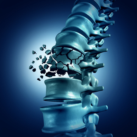 Photo for Spinal Fracture and traumatic vertebral injury medical concept as a human anatomy spinal column with a broken burst vertebra due to compression or other osteoporosis back disease. - Royalty Free Image