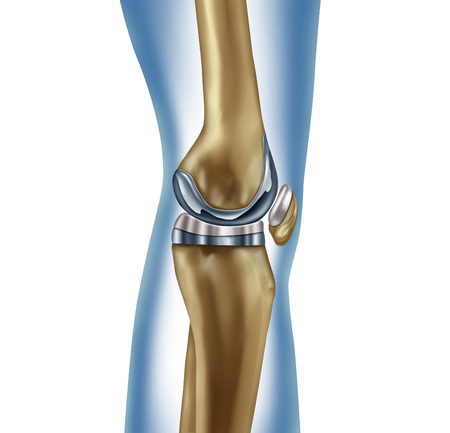 Photo pour Replacement knee implant medical concept as a human leg anatomy after a prosthetic surgery as a musculoskeletal disease treatment symbol for orthopedics with 3D illustration elements on white. - image libre de droit