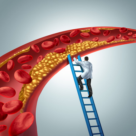 Foto de Cholesterol medical diagnosis concept as a doctor investigating atherosclerosis or arterial plaque clogging an artery with 3D render elements. - Imagen libre de derechos
