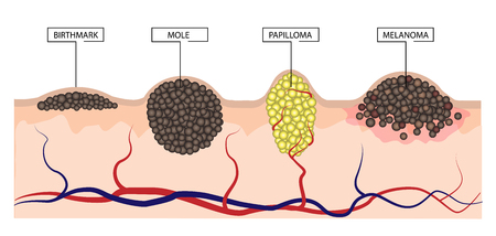 Foto de The difference between a birthmark, mole, papilloma and melanoma. Infographics. Illustration - Imagen libre de derechos