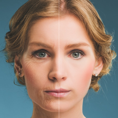Photo for Portrait of a woman before and after botox - Royalty Free Image