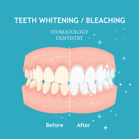 Illustration pour Teeth whitening and bleaching concept. Dentistry and stomatology vector - image libre de droit