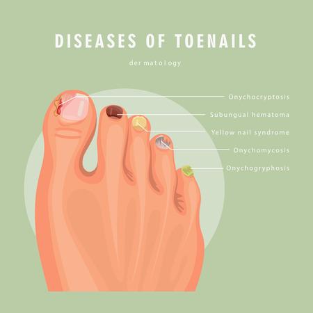Ilustración de Fungus toenail infection vector medicine poster. Colorful design. Detailed image with text. - Imagen libre de derechos