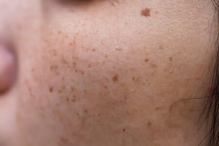 Foto de Woman 's problematic skin , acne scars ,oily skin and pore, dark spots and blackhead and whitehead on the face - Imagen libre de derechos