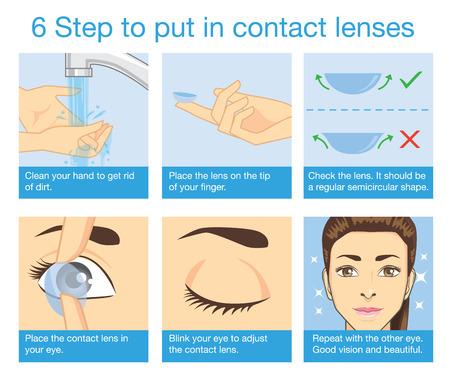 Illustration pour 6 step to put in contact lens - image libre de droit