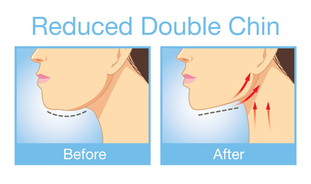 Illustration pour Illustration before and after reduce a double chin. Look firming up in after image - image libre de droit