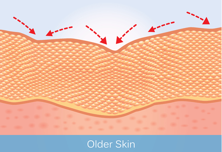 Illustration pour Wrinkles and sagging skin of elderly. This illustration about beauty and health care. - image libre de droit