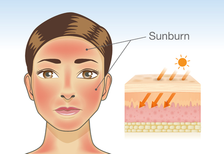 Illustrazione per Skin layer of woman which appear redness on facial and neck from sunburn. Illustration about danger of Ultraviolet radiation. - Immagini Royalty Free