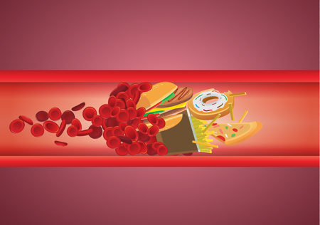 Illustration pour Blood flow blocked from fast food which have high fat and cholesterol. Illustration about unhealthy eating. - image libre de droit