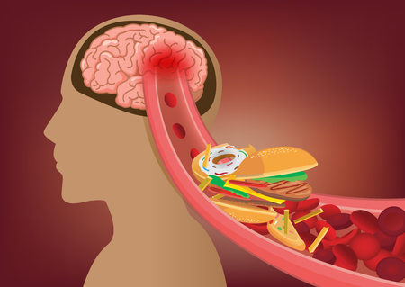 Illustration pour Blood can't flow into human brain because fast food made clogged arteries. Illustration about stoke disease and medical concept. - image libre de droit