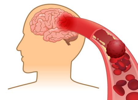 Illustration pour Blood cell can't flow into human brain because clogged arteries by blood clot. Illustration about Stroke and medical concept. - image libre de droit