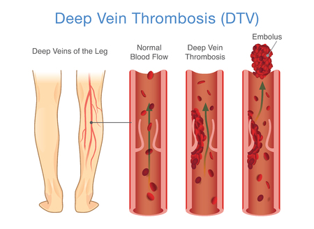 Illustrazione per Medical Diagram of Deep Vein Thrombosis at leg area. Illustration about abnormally of blood floow. - Immagini Royalty Free