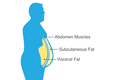 Illustrazione per Visceral fat and subcutaneous fat that accumulate around your waistline. Illustration about medical diagram. - Immagini Royalty Free