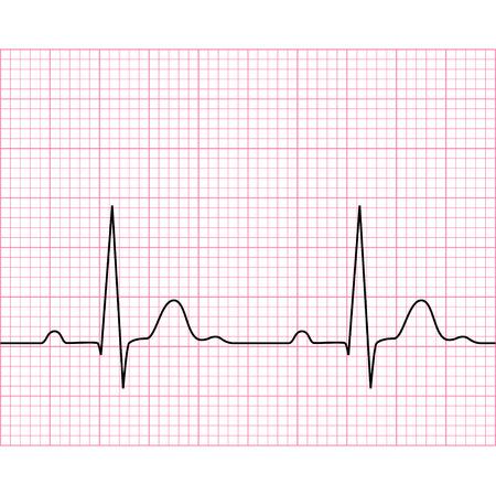 Ilustración de Illustration of medical electrocardiogram - ECG on chart paper, graph of heart rhythm, 2d illustration, vector, eps 8 - Imagen libre de derechos
