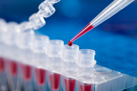 Foto de PCR micro tubes strips - Imagen libre de derechos