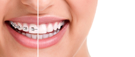 Foto de woman teeth and smile. Close up,half with braces  - Imagen libre de derechos