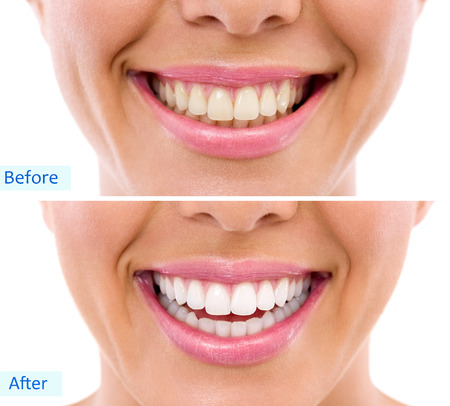 Photo pour  whitening - bleaching treatment ,before and after ,woman teeth and smile, close up, isolated on white  - image libre de droit