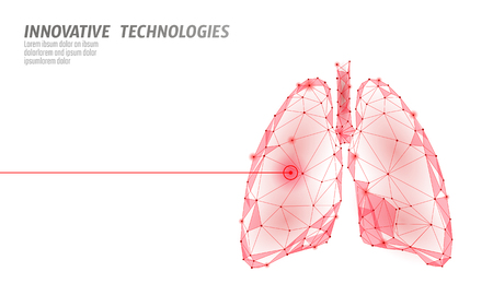 Ilustración de Human lungs laser surgery operation low poly. Medicine disease drug treatment painful area. Red triangles polygonal 3D render shape. Pharmacy tuberculosis cancer template vector illustration - Imagen libre de derechos